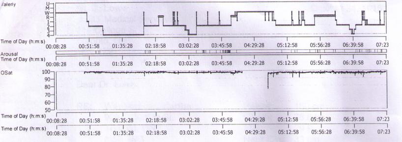 sleep-study-graph